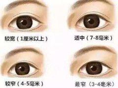 双眼皮做的太宽会有哪些影响?
